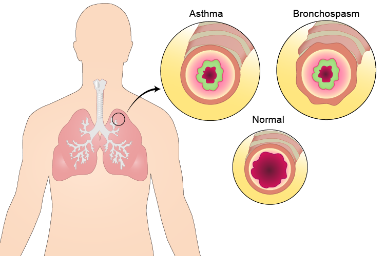 body_lungs_asthma