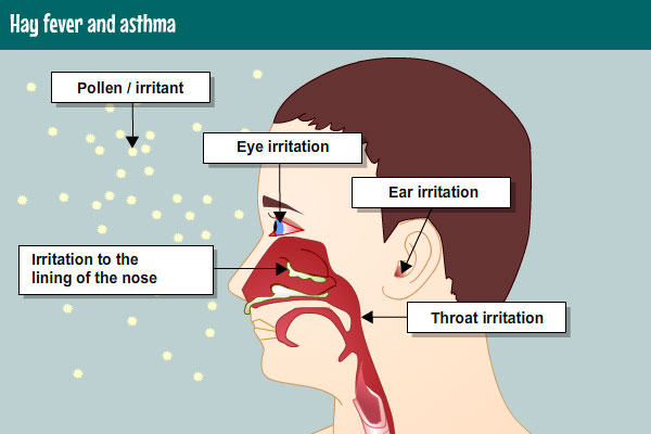 steroid inhalers for pneumonia